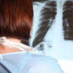 libri pneumologia chirurgia toracica, malattie dell'apparato respiratorio